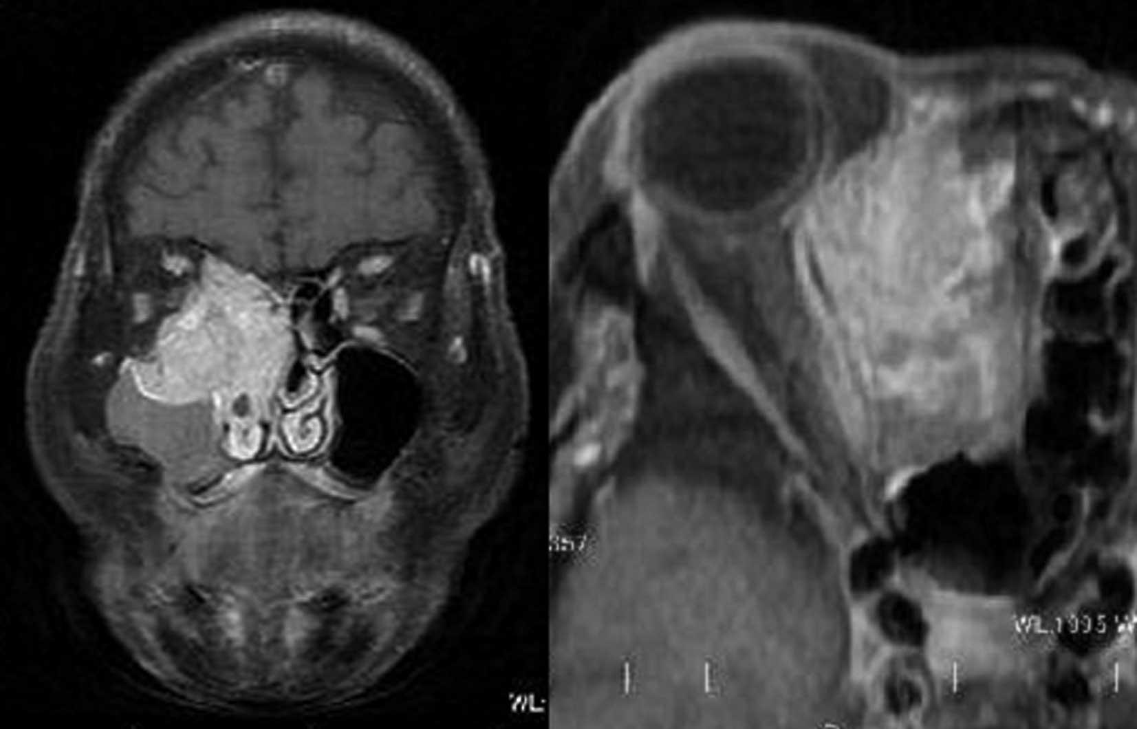 MRI EPIDER