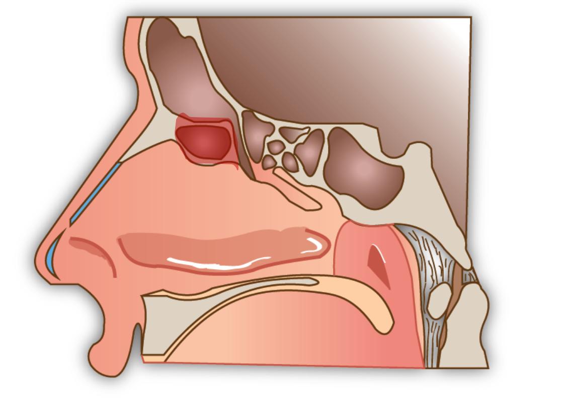 Schéma du Draf I: en rouge la zone retirée