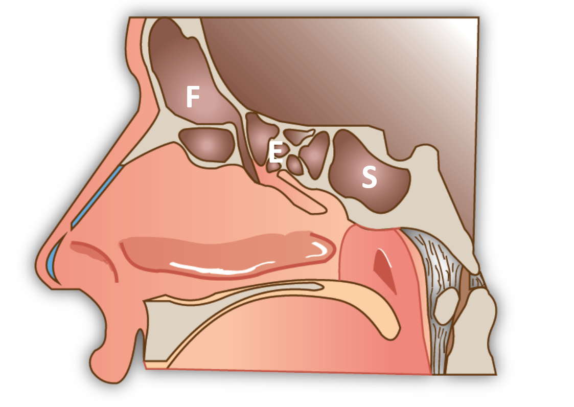 Schéma des sinus. F: sinus frontal; E: Ethmoide; S: sphénoide